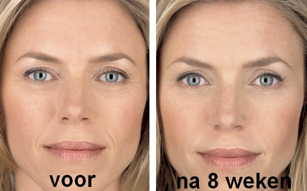 Wrinkle Stop Face effect