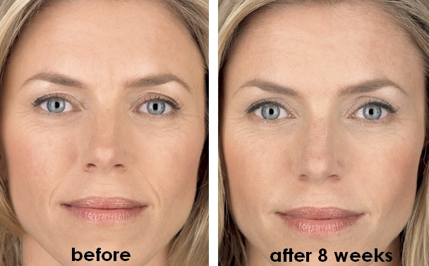 Effect Wrinkle Stop Face