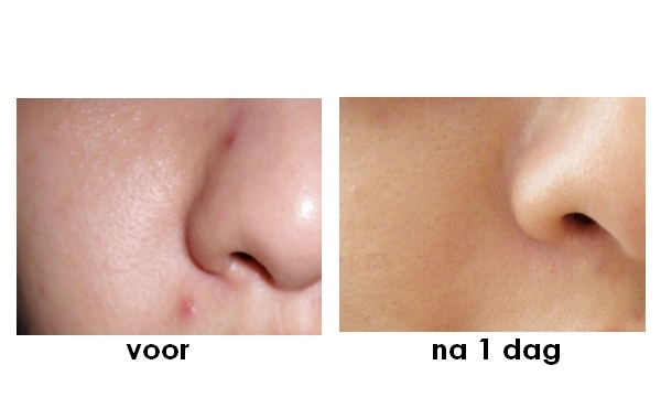 Effect Pimple Stop
