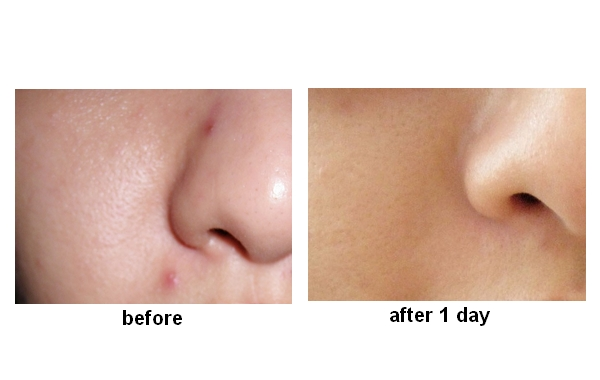 Pimple Stop Effect